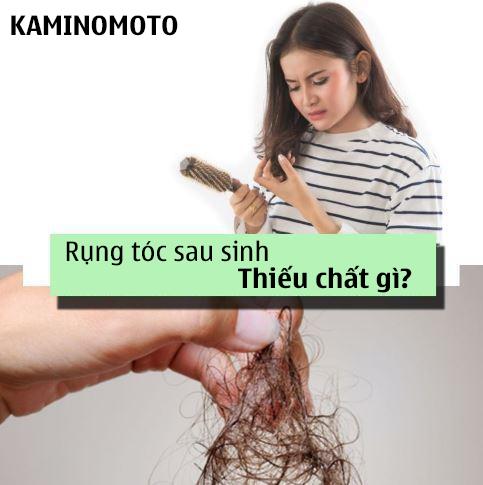 rung-toc-sau-sinh-thieu-chat-gi
